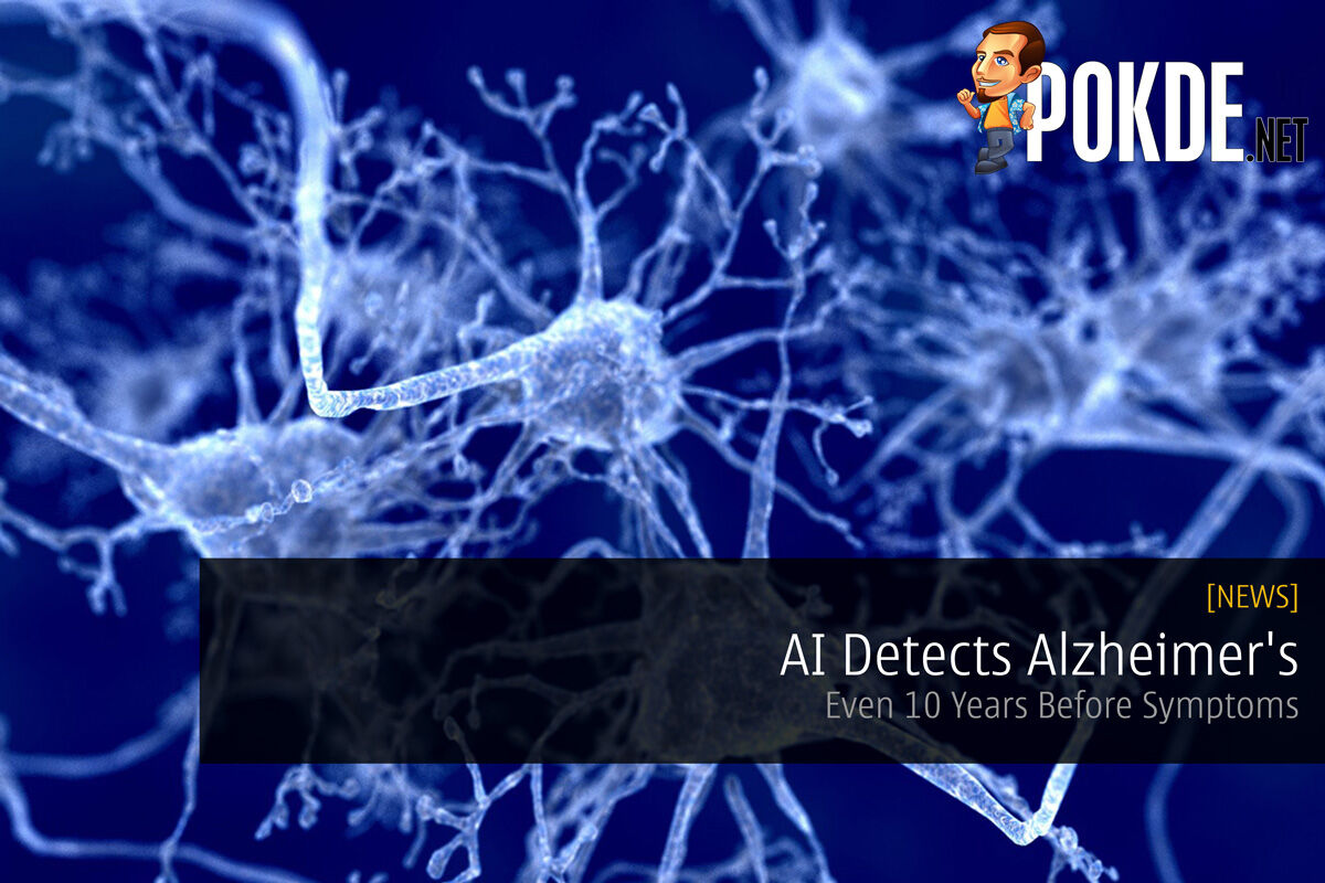 AI Detects Alzheimer's - Even 10 Years Before Symptoms 27